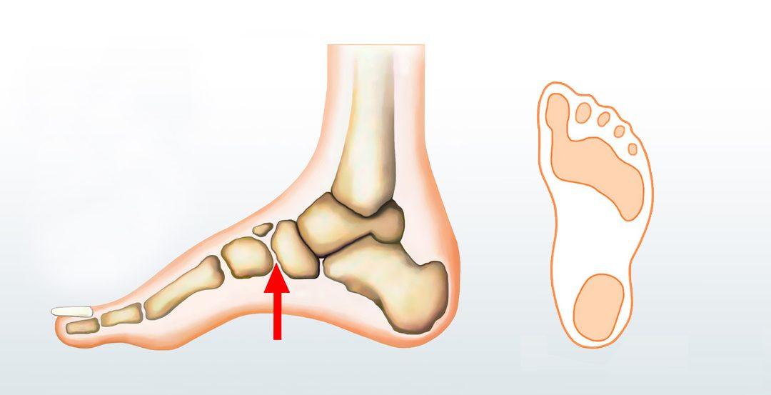 Todo lo que necesitas saber sobre el pie cavo