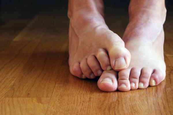 6 Razones por las que puedes tener picor en los pies