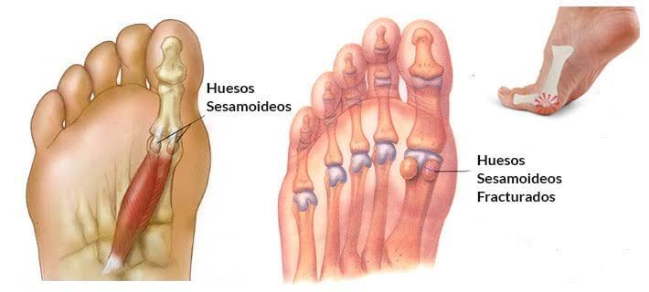 ¿Qué conoces sobre las Sesamoiditis?
