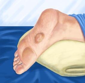 Enfermedad de Ledderhose o Fibromatosis Plantar